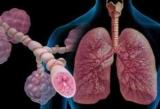 Медицина. Сестринський догляд при бронхіальній астмі