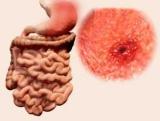 Синдром Дьелафуа: опис, симптоми та особливості лікування