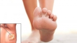 Бородавка на ступні: причини появи та методи лікування. Підошовна бородавка